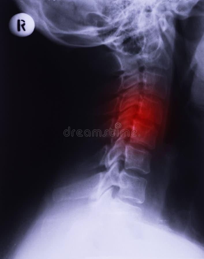 Raggi x del collo fotografie stock