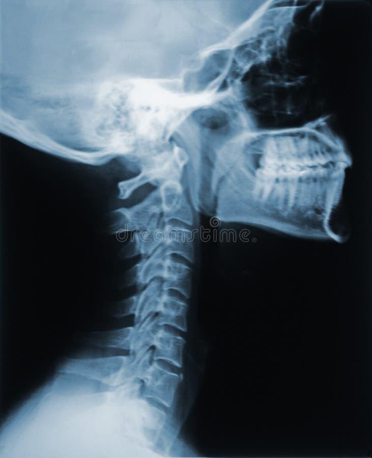 Raggi X del collo immagini stock