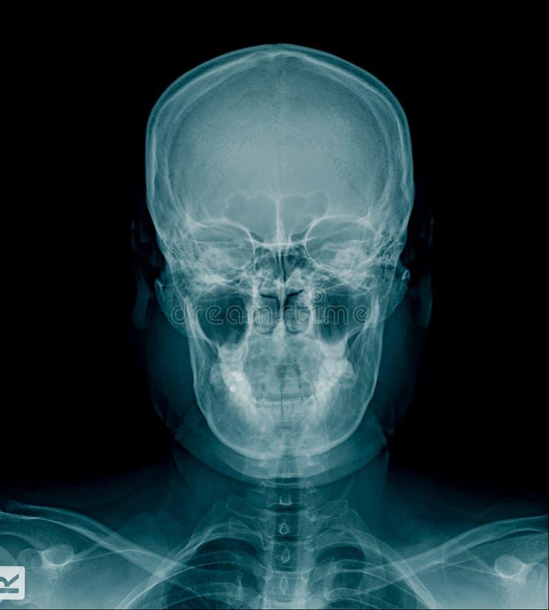 Raggi x del cranio e parte della spina dorsale cervicale fotografie stock libere da diritti