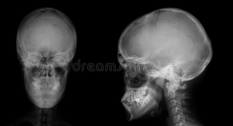 Raggi x del cranio Osteoide-osteoma del seno frontale fotografia stock libera da diritti