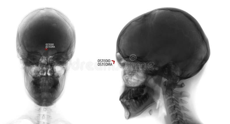 Raggi x del cranio Osteoide-osteoma del seno frontale Negativo indicatore fotografia stock