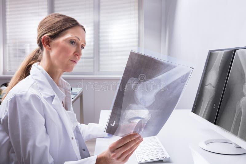 Raggi x del dottore Examining Knee fotografia stock libera da diritti