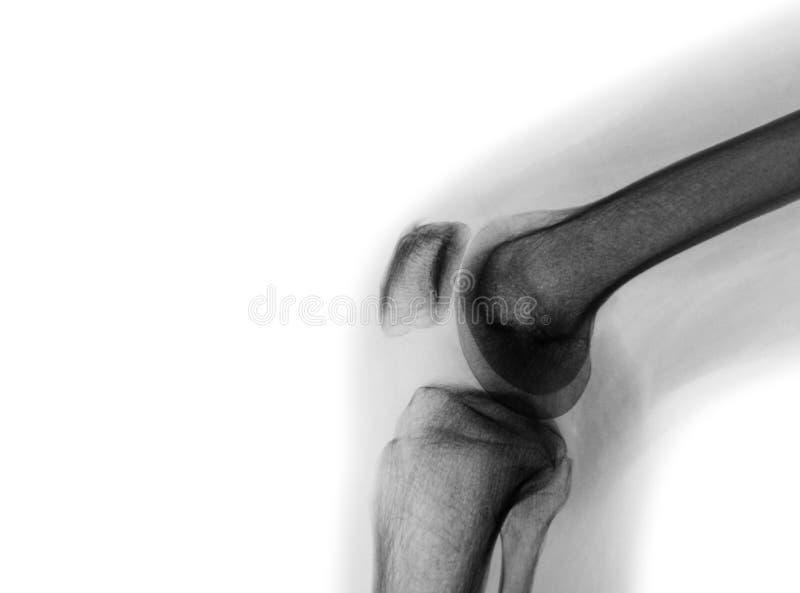 Raggi x del film del giunto di ginocchio normale immagine stock libera da diritti