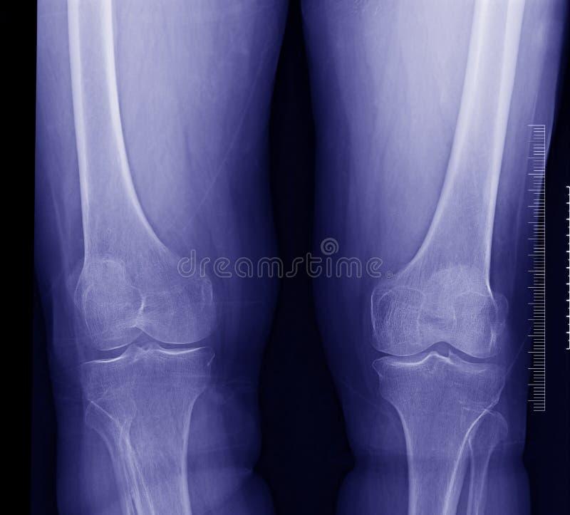 Raggi X del ginocchio immagini stock