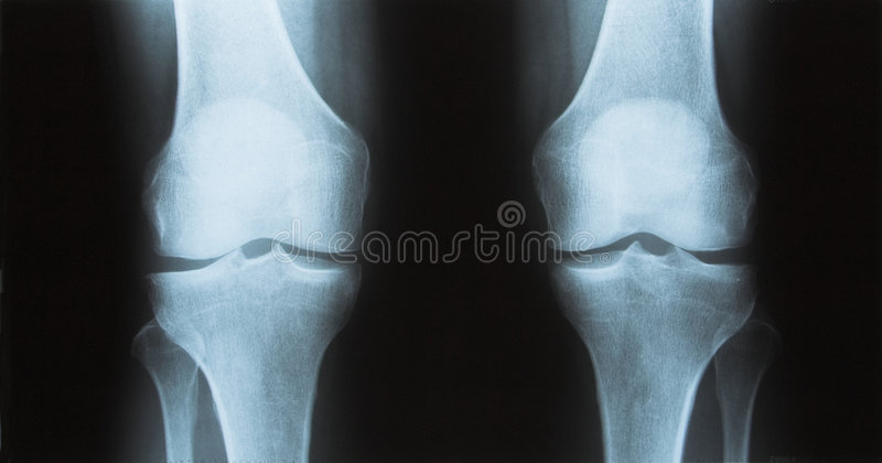 Raggi X del ginocchio immagini stock libere da diritti