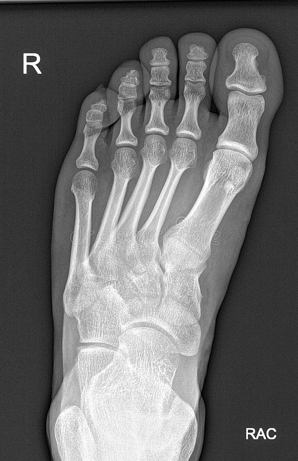 Raggi x del piede immagini stock