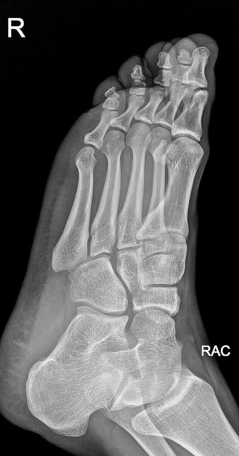 Raggi x del piede immagine stock