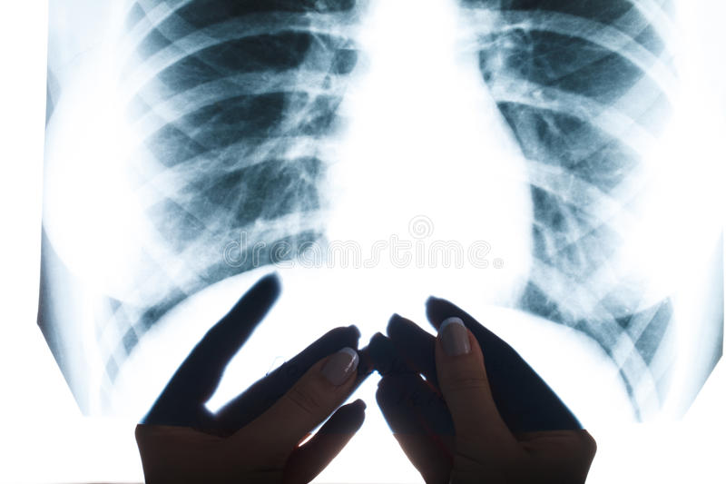 Raggi x del primo piano umano del polmone fotografie stock