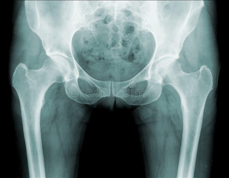Raggi X dell'anca, dolore dell'anca fotografia stock