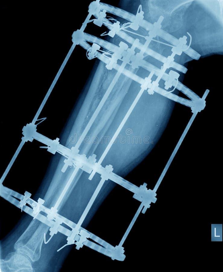 Raggi x della gamba con la fissazione della vite fotografie stock