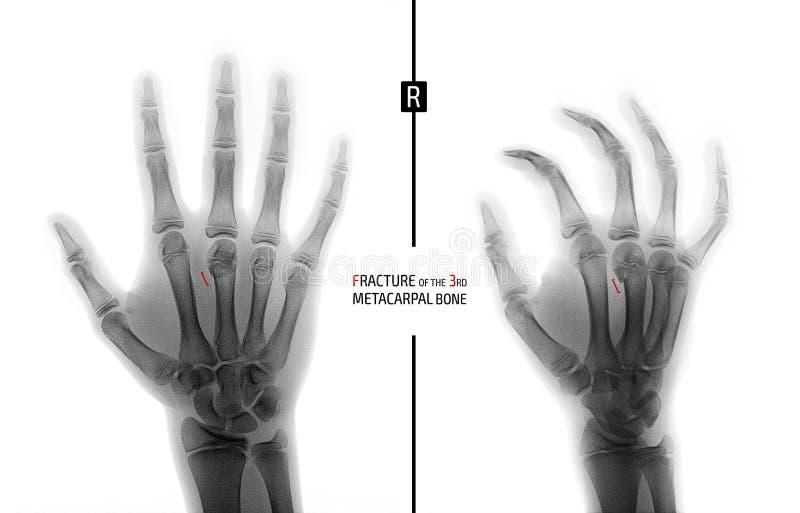Raggi x della mano Frattura del terzo osso metacarpale il bambino indicatore Negativo immagini stock libere da diritti