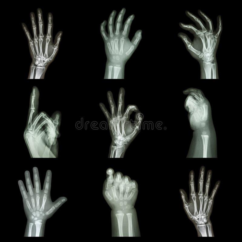 Raggi x della raccolta delle mani immagini stock