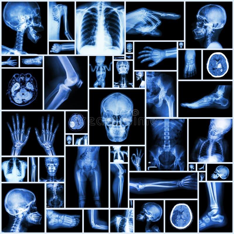 Raggi x della raccolta multipart dell'essere umano fotografia stock libera da diritti