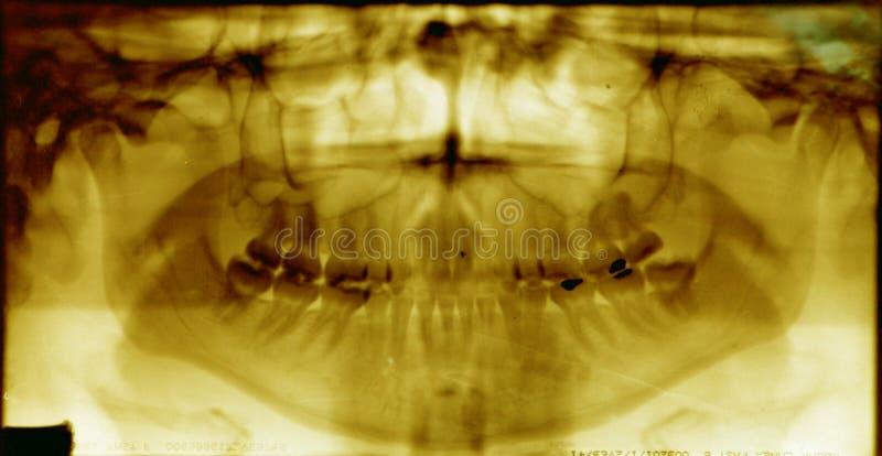 Raggi x dentari della bocca piena (raggi x) fotografie stock