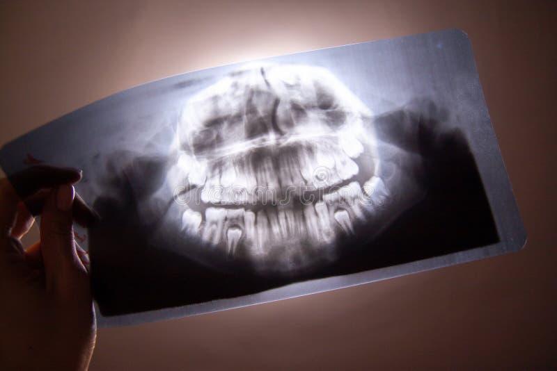Raggi x dentari panoramici della foto del bambino con i denti di latte ed i primi denti molari in mano di medico Fuoco selettivo  immagini stock