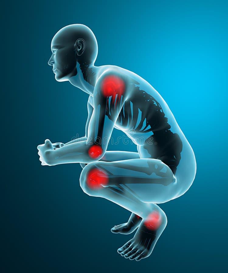 Raggi x di dolori articolari dell'uomo illustrazione vettoriale