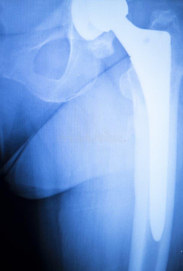 Raggi x di titanio della sostituzione dell'impianto dell'anca fotografia stock libera da diritti