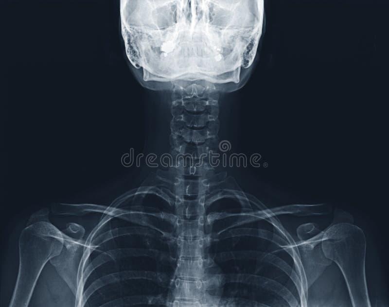 Raggi x di un collo e della spina dorsale immagini stock