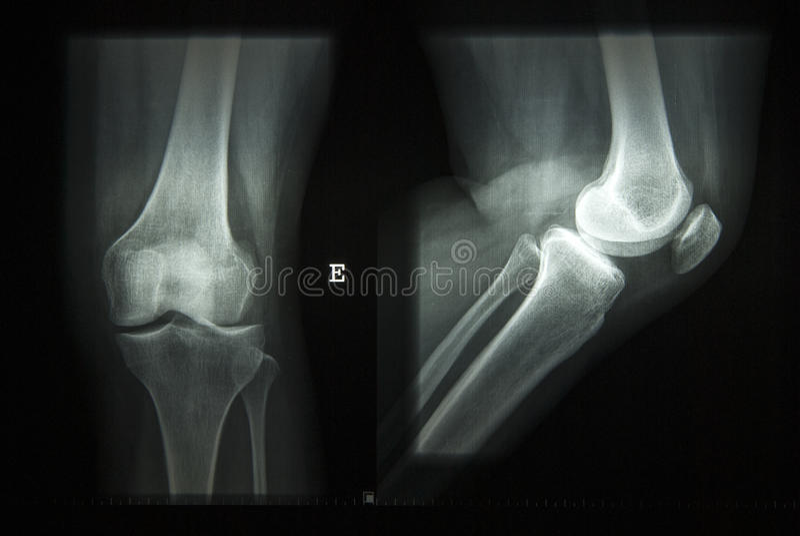 Raggi X di un ginocchio immagine stock libera da diritti