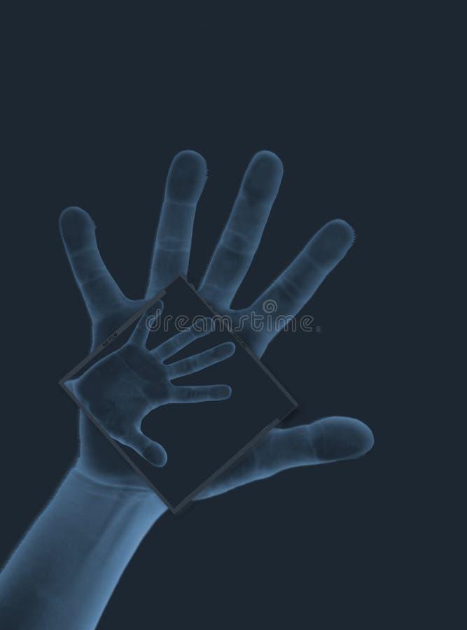 Raggi X II della mano royalty illustrazione gratis