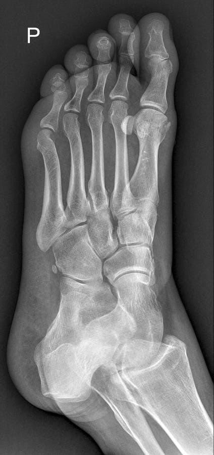 Raggi x medici del piede fotografia stock