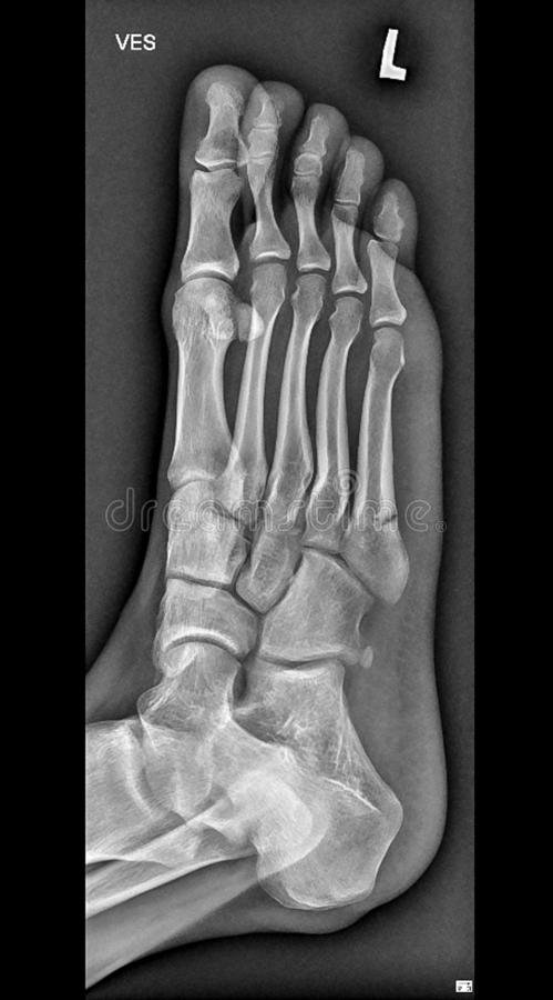 Raggi x medici del piede, ossa dell'arto inferiore fotografia stock