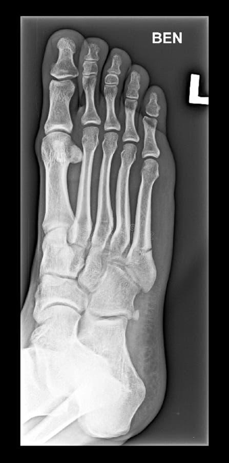 Raggi x medici del piede, ossa dell'arto inferiore fotografie stock libere da diritti