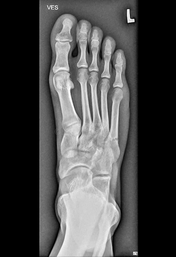 Raggi x medici del piede, ossa dell'arto inferiore fotografie stock