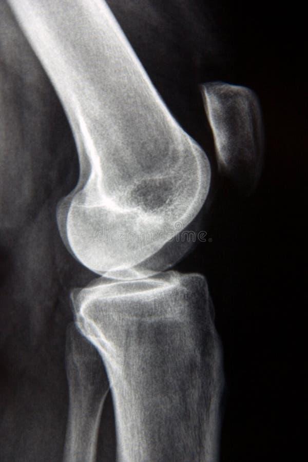 Raggi X normali del ginocchio fotografia stock