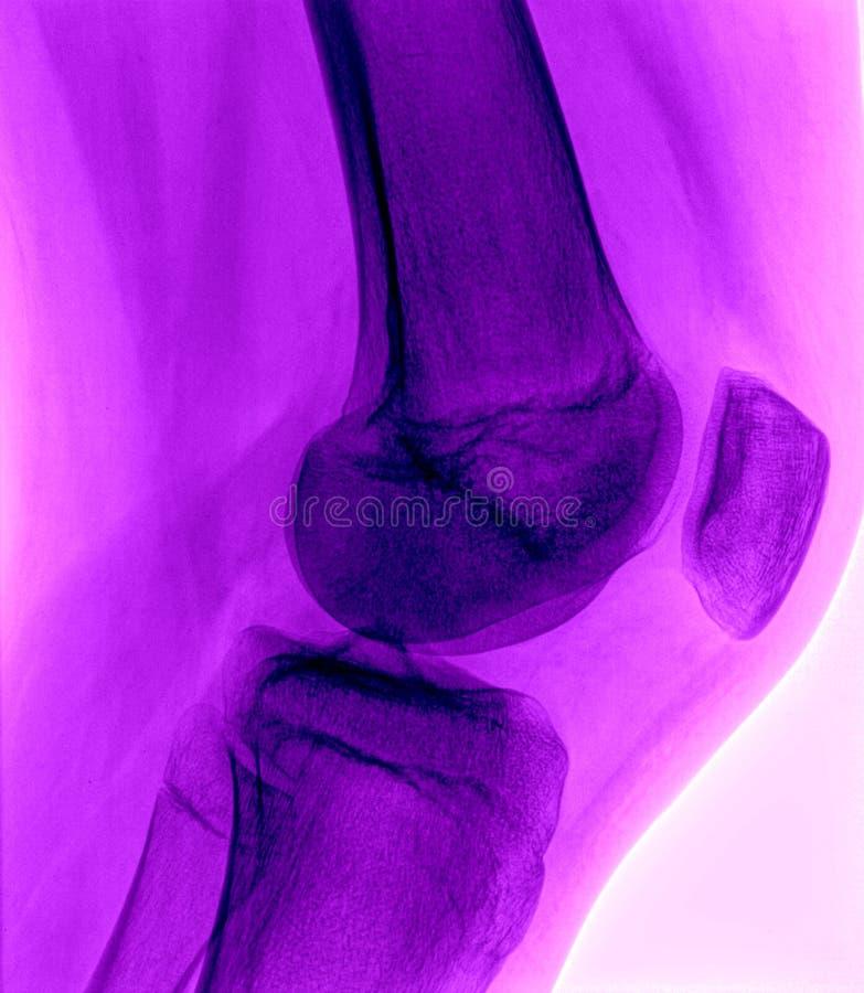 Raggi X normali del ginocchio - porpora fotografia stock