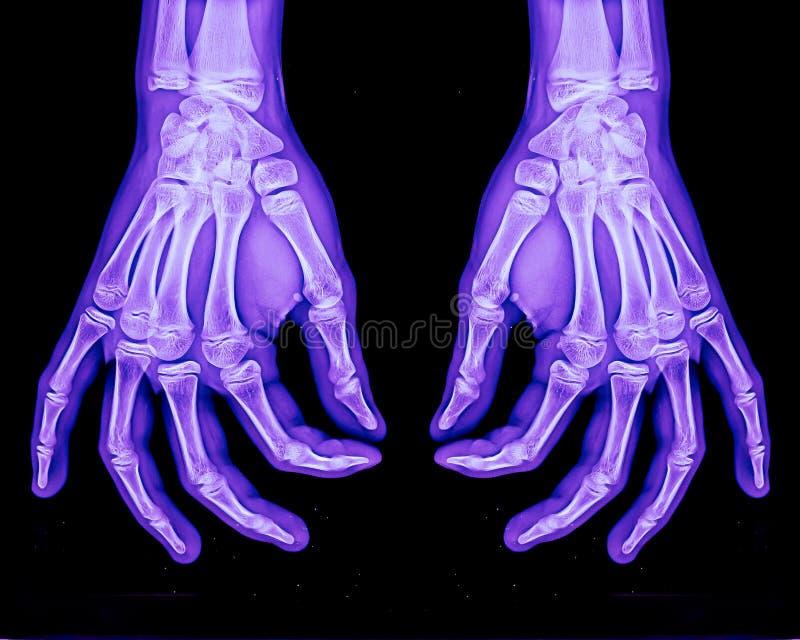 Raggi X normali di entrambe le mani fotografia stock