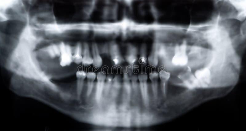 Raggi X panoramici fotografia stock
