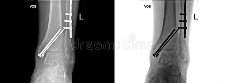 Raggi x rotti del tallone riparati con le viti ed il piatto, dolore del piede all'ufficio di medico fotografia stock