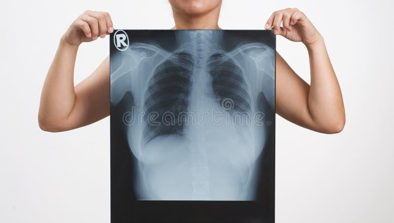 Raggi X fotografia stock libera da diritti