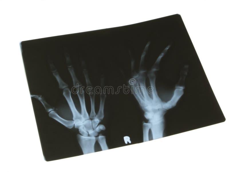 Raggi X immagine stock libera da diritti
