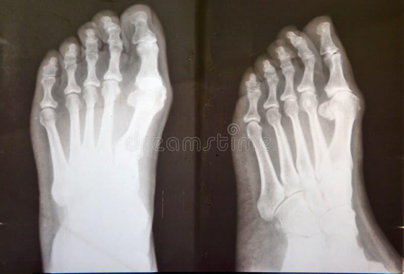 Raggio x dei piedi femminili immagine stock libera da diritti