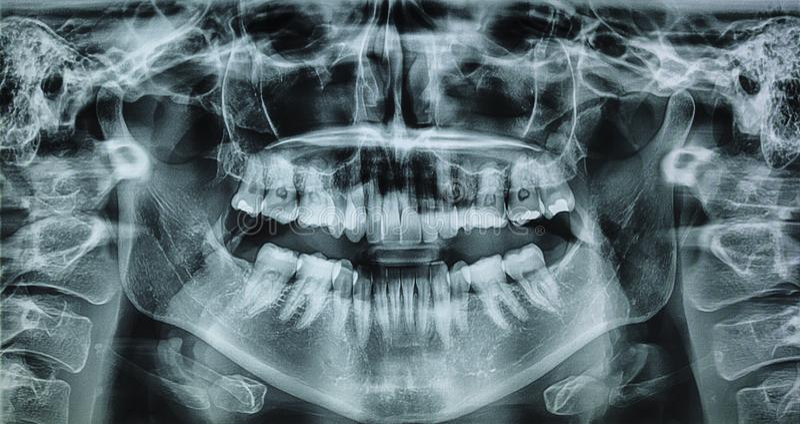 Raggio x della bocca di una donna nella rotazione 360 fotografia stock libera da diritti