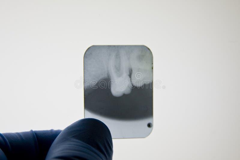 Raia de X dental fotografia de stock