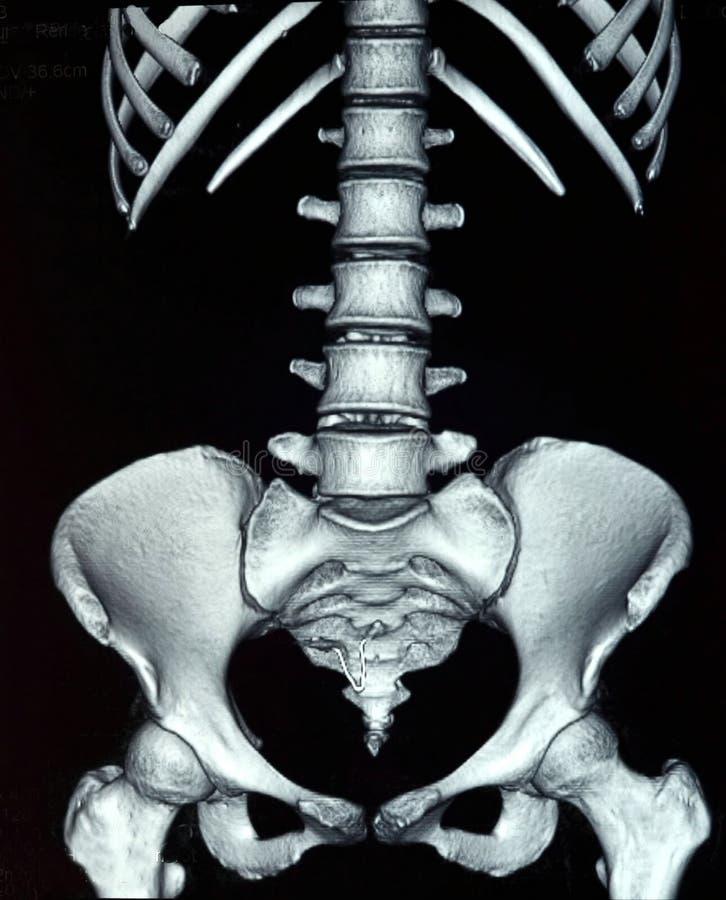Raio X abdominal ilustração stock