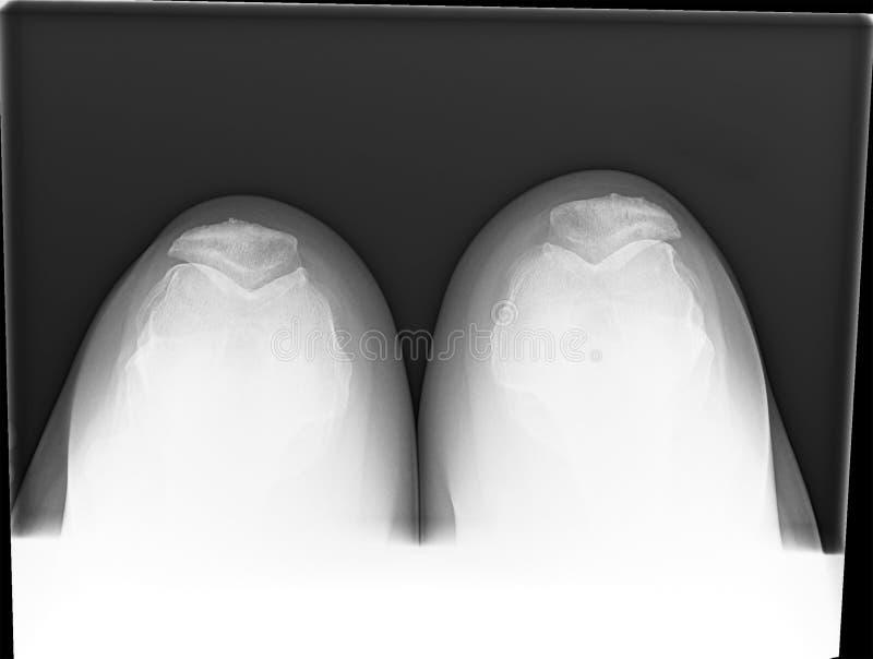 Raio X curvado da articulação do joelho da fêmea madura com osteodistrofia imagem de stock