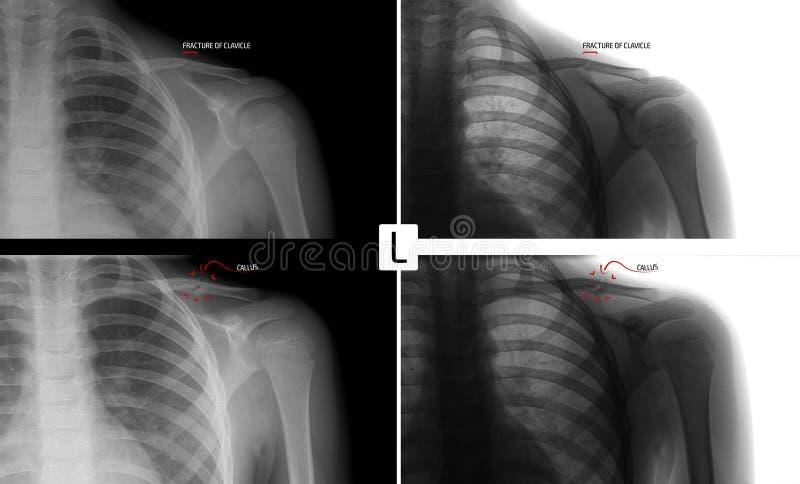 Raio X da clavícula esquerda Fratura da clavícula da criança Consolidação da fratura marcador positivo Negativo imagens de stock