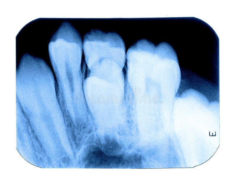 Raio X da dente-odontologia do leite do bebê fotografia de stock