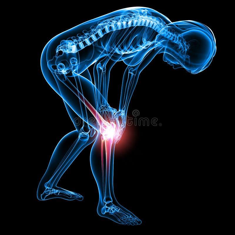 Raio X da dor do joelho ilustração royalty free