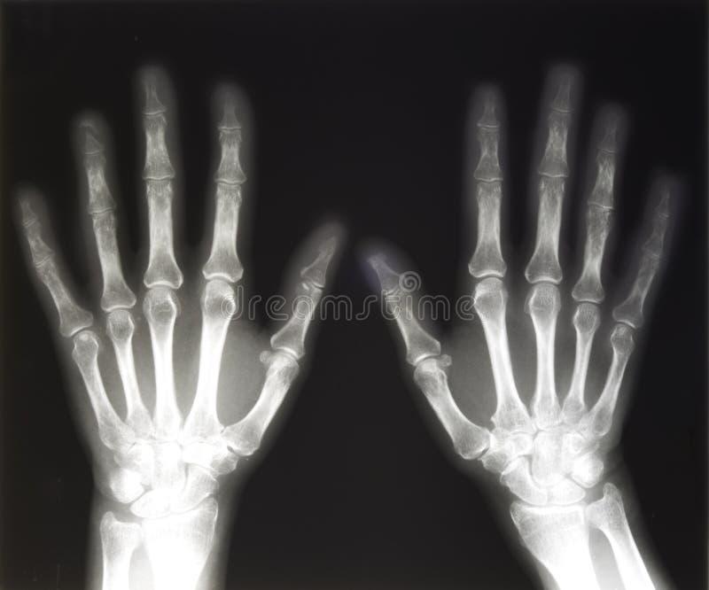 Raio X das mãos humanas fotos de stock royalty free