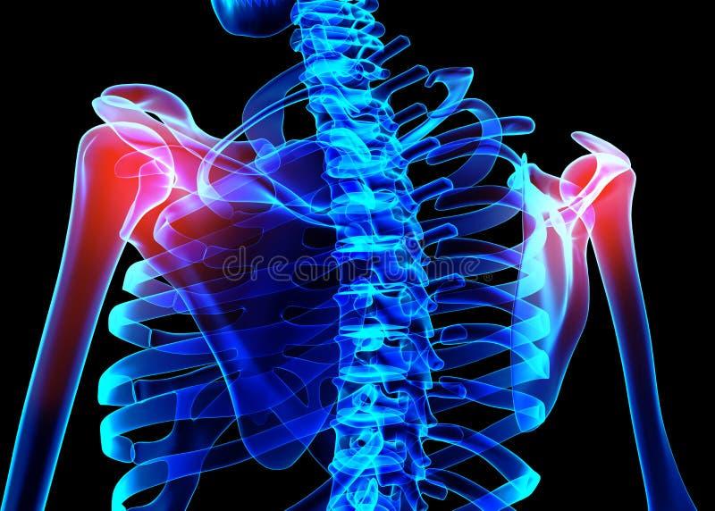 Raio X de esqueleto doloroso do ombro, ilustração 3D ilustração do vetor