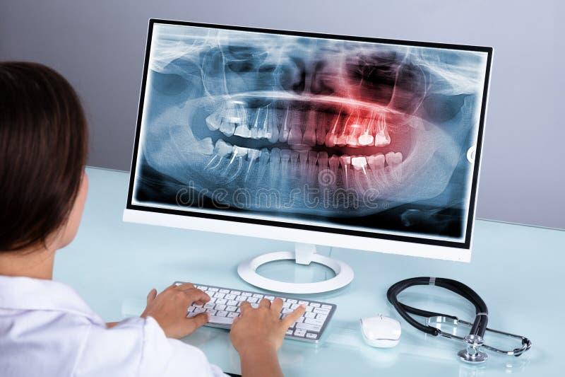 Raio X de Looking At Teeth do dentista no computador fotografia de stock royalty free