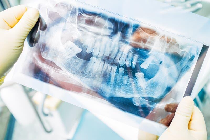 Raio de x panorâmico diagnóstico do estágio da odontologia fotografia de stock