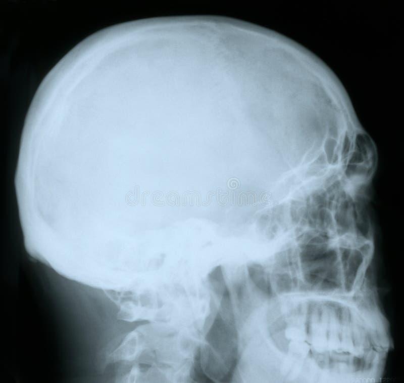 Raio X de um crânio humano fotos de stock