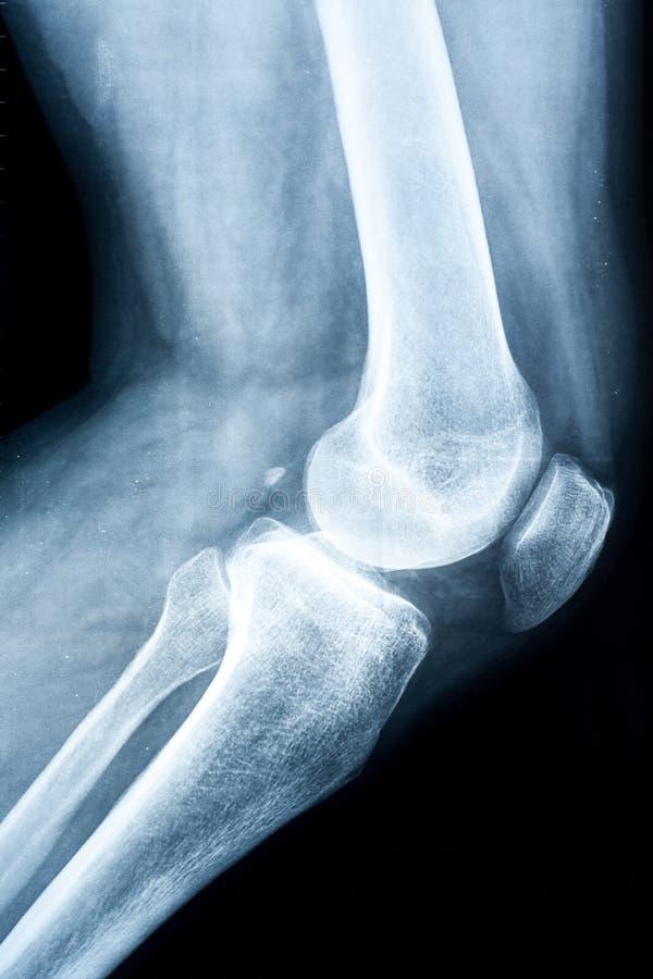 Raio X de um joelho humano imagem de stock royalty free