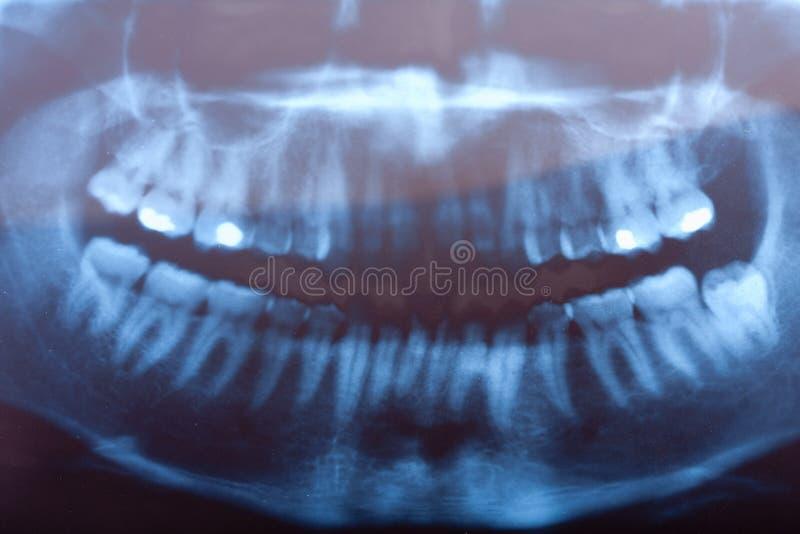 Raio X dental fotografia de stock